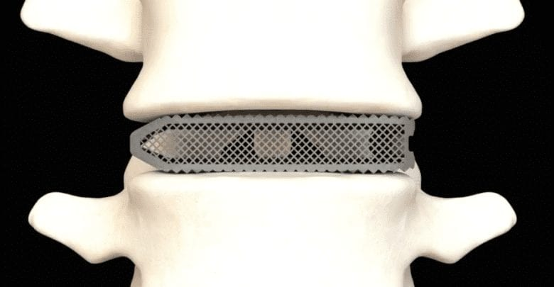 FDA Approved Medical Device for Spinal Fusion