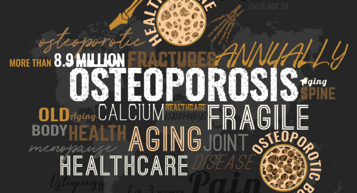 Osteoporosis is a disease of the bone, which literally means porous bone, and is a disease in which the density and quality of bone are reduced. As bones become more porous and fragile, the risk of fracture is greatly increased.